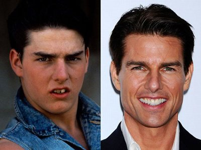 tom cruise ortodonti